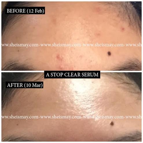 Review A Stop Clear Serum 30ml 55ml Meilinda Sg