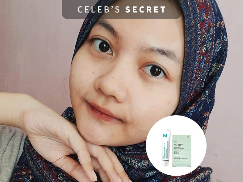 [DISKON] M+ Cream & A.Stop Acne Patch Murah!